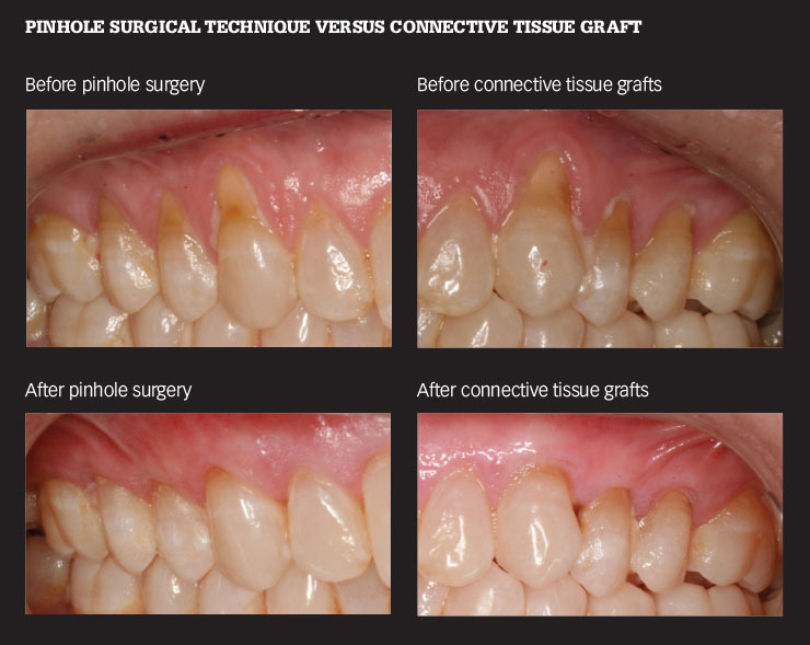 Dental Economics - November 2016 - Pinhole Surgical