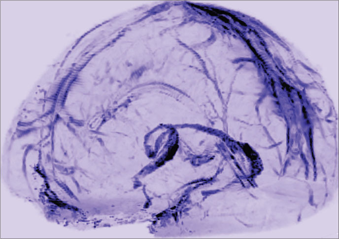 Neurology Reviews - Jan 2018 - MRI Reveals Lymphatic Vessels in Dura