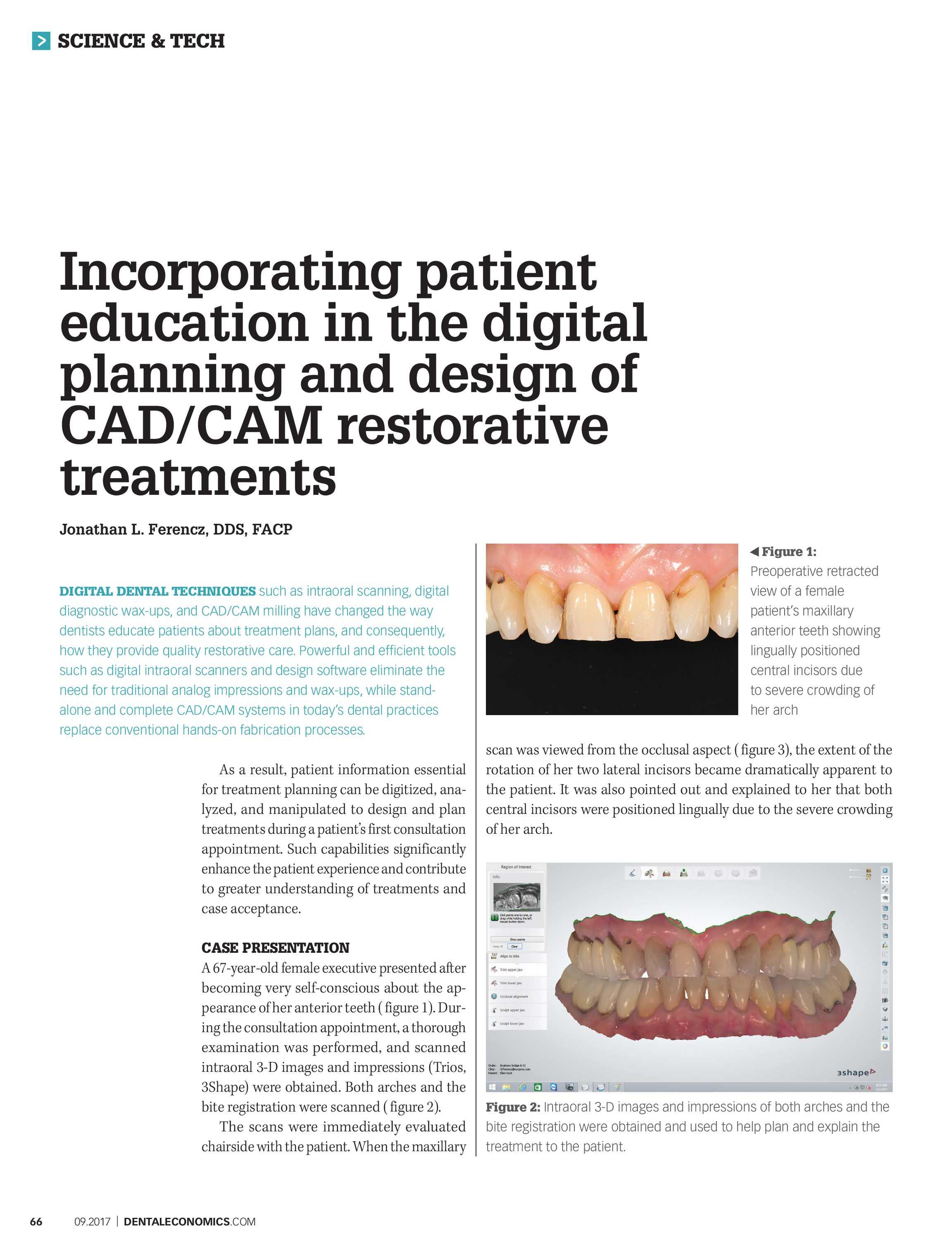 Dental Economics - September 2017 - page 66
